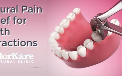 Homeopathy solution for Tooth Extractions in Brisbane
